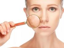 Šta vam vaša koža govori o zdravlju