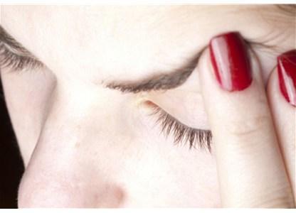 Glavobolja – pametno je otjerajte